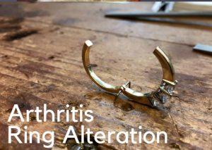 Rings for Arthritis